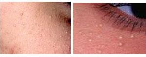 Mølholm - Hudsygdomme, kosmetiske hudproblemer, kosmetiske