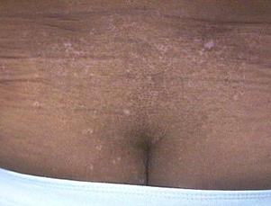 pigmentforandringer i huden hvide pletter
